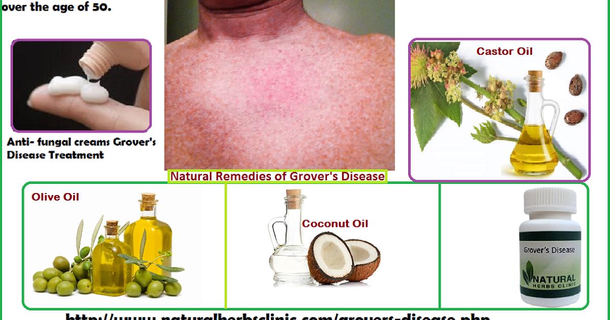 Grover's Disease Natural Remedies