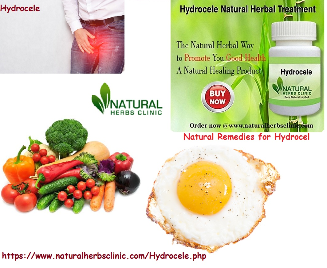 Use Natural Remedies for Hydrocele to treat it naturally